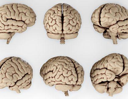 Professor Studies Brain Images to Diagnose Autism