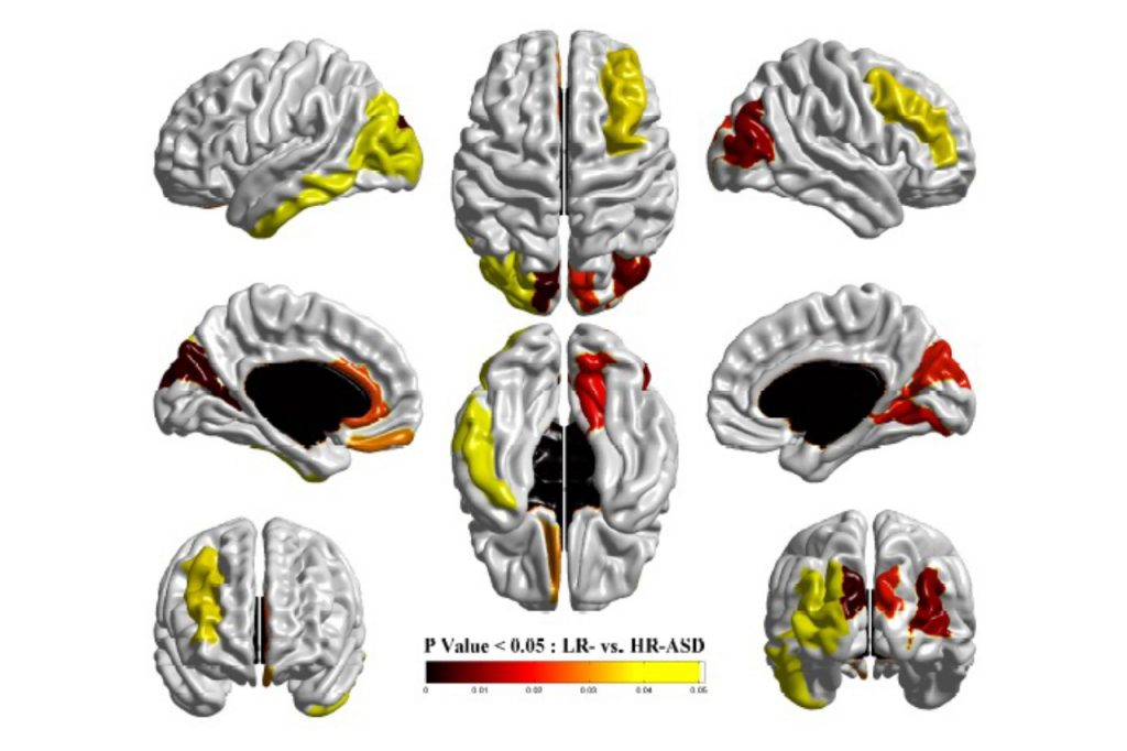Munsell's computational approach is able to show significant differences in the surface area of the brain in infants at age 6 and 12 months between typically developing children and children with autism, including the identified regions related to visual processing, word recognition, memory and language processing.